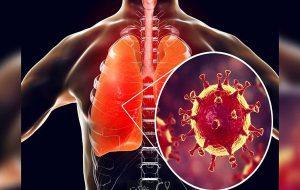 انواع حالات کرونا و علائم آن/تاثیر کرونا بر ریه/انواع پنومونی (ذات الریه)